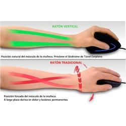 PERIMICE-513 L. Ratón ergonómico vertical.  Prevención Síndrome Túnel Carpiano